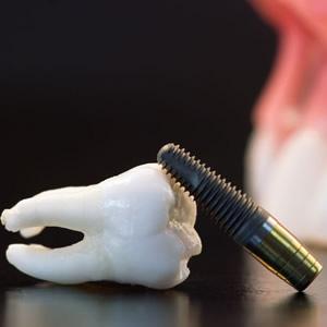 08_implantologia